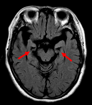 アルツハイマー病が疑われた患者の脳のMRI画像 アルツハイマー病が疑われた患者の脳のMRI画像。